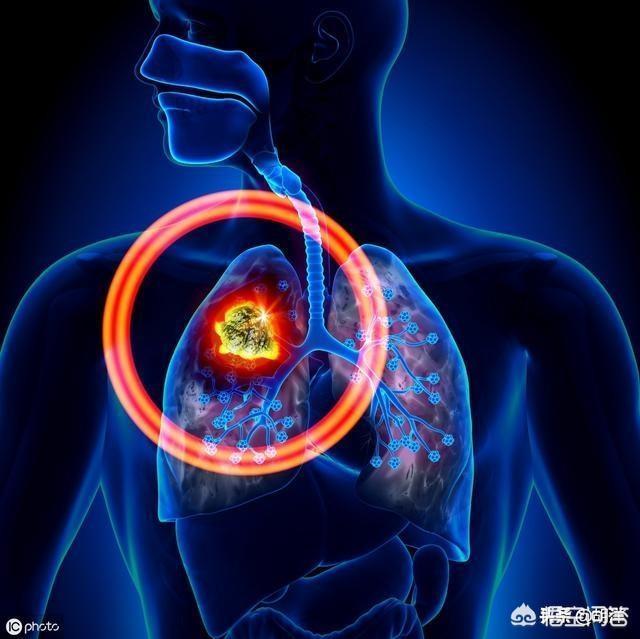 治疗肺癌的分子靶向药都有哪些?该如何选择适合自己的?